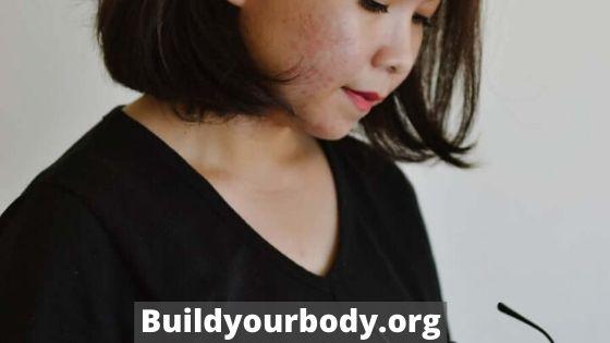 Moisturizer can prevent acne