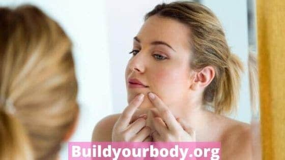 acne on dry skin