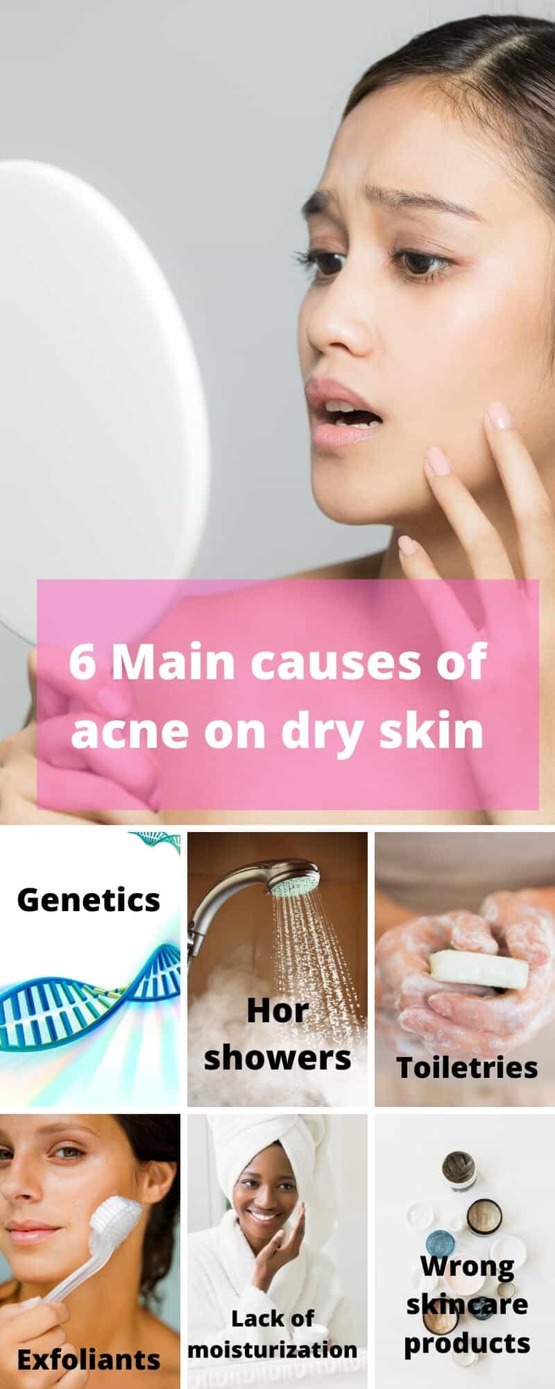 infographic of how dry skin produces acne