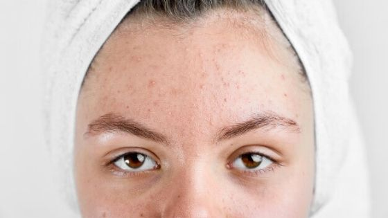 How acne is caused on dry skin