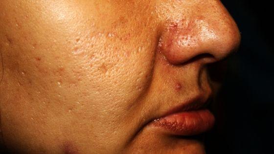 oily skin with acne and pimples
