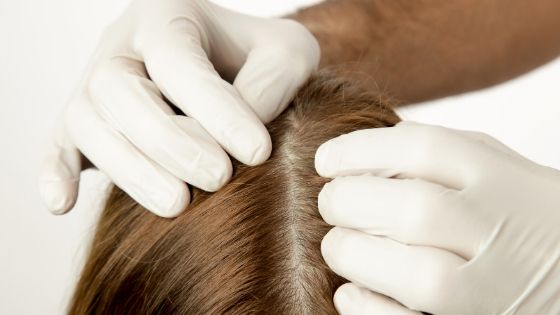what is the reason for oily scalp?