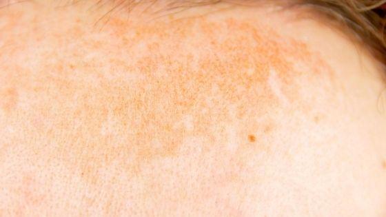What triggers atopic dermatitis?