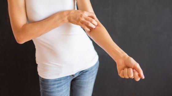 prevention for dermatitis
