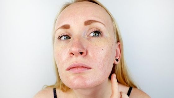 what is good for my cutis?
