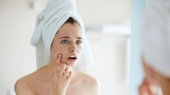 How can I remove pimples and dark spots from my face naturally?