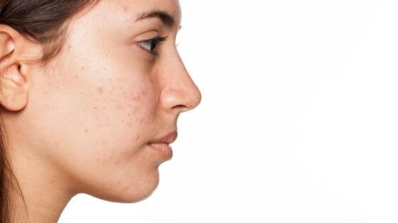 How to eliminate pimples and dark spots