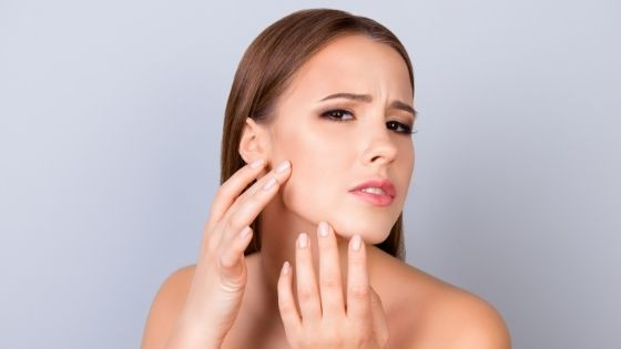 How can I control my oily skin naturally?