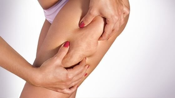 How can I fight Cellulite?