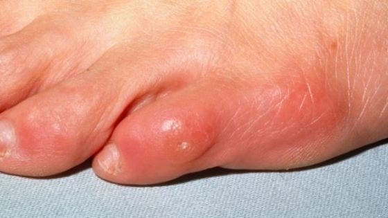 Types of calluses
