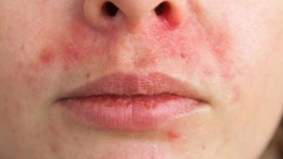 Can anxiety cause rashes?