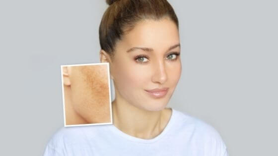 How to remove a dark spot