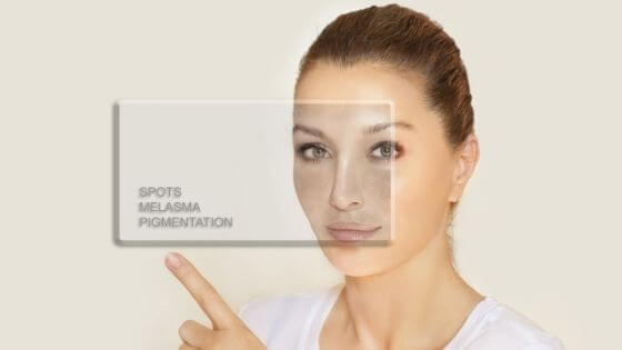how to remove a dark spot naturally