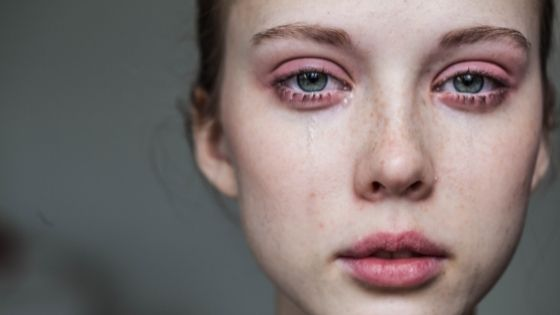 woman with her eyes burning while crying