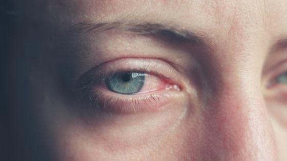 Why do my Tears Burn like Acid? Our Doctor Shares The Real Reason!